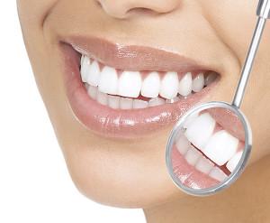 una-sonrisa-perfecta-blanquear-dientes