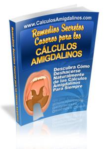 Tonsilolitos-book