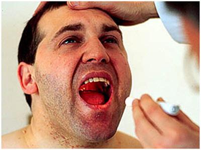 Оральный кандидоз - часто встречающаяся на стоматологическом приеме патолог