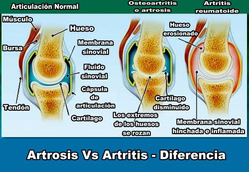 artrosis-artritis-diferencias