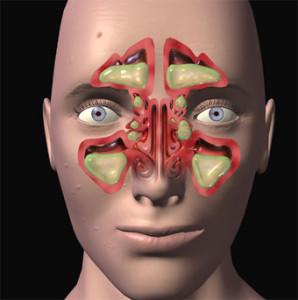 remedio para sinusitis 298x300 Remedios naturales para la sinusitis