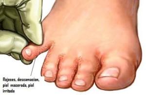 pie-de-atleta-tratamiento1