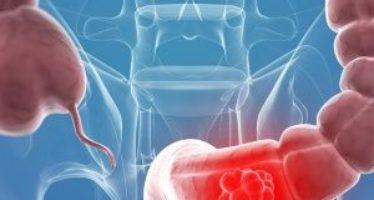 Cancer de Colon Prevencion – Consejos naturales